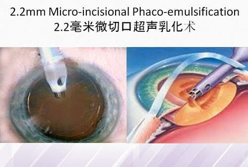 Micro incisional Phaco emulsification