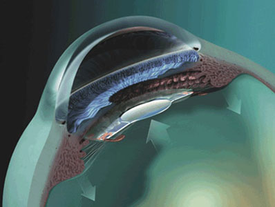 Lens implants for people with cataract