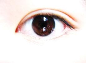 oriental eyelid surgery performed by Dr Natasha Lim