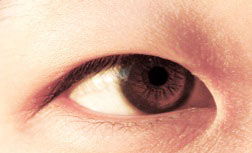 oriental eyelid with a single crease