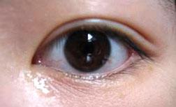 oriental eyelid with double eyelid crease