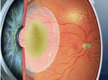 Eye with cloudy crystalline lens or cataract