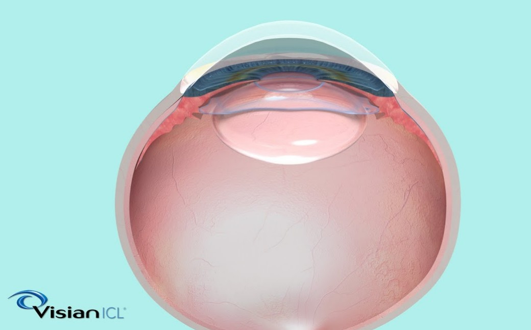 A picture of eye lens
