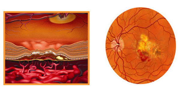 Formation of new vessels in neovascular AMD Macular Bleed