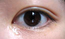 oriental eyelid with double eyelid crease