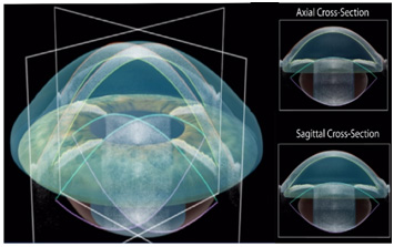 axial and sagittal cross sections of the eye