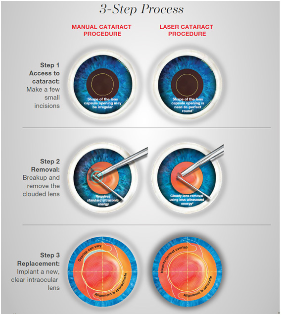 Procedure of traditional manual cataract surgery and laser cataract surgery described in three step process
