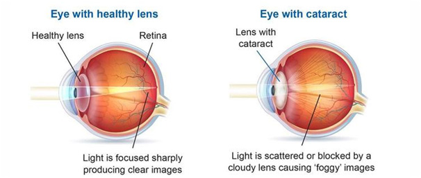 A comparison between a healthy eye versus an eye with cataract