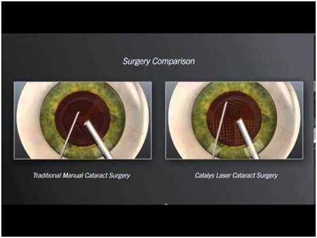 surgery comparison between laser cataract surgery versus traditional manual cataract surgery