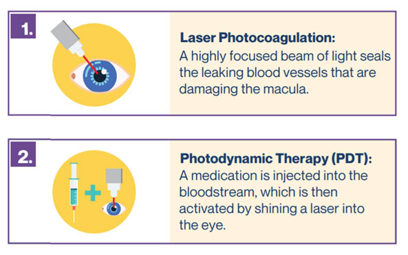 Treatment of MDA using Laser Photocoagulation and Photodynamic Therapy